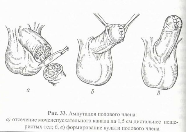 Ампутация полового члена (схема)