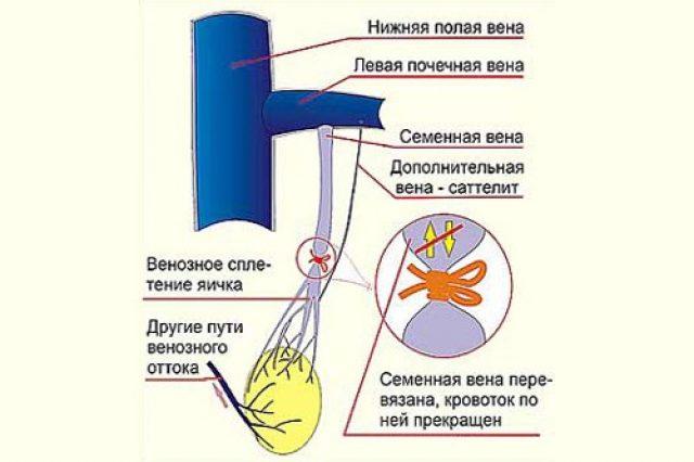 Операция Иваниссевича (схема)