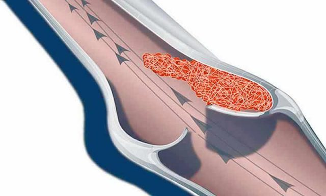 Венозный тромбоз (схема)