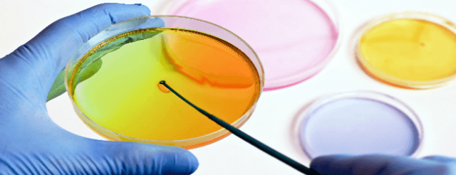 Бактериологический посев мочи