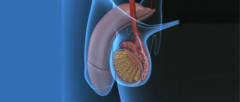 Метод Мармара при варикоцеле восстановление после операции