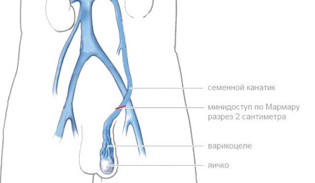 Доступ к месту патологии при операции Мармара