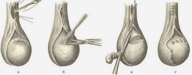Удаление придатка яичка: схема