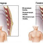 Гинекомастия (схема)