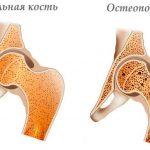 Нормальная кость и поражённая остеопорозом