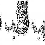 Уменьшение яичка в размере