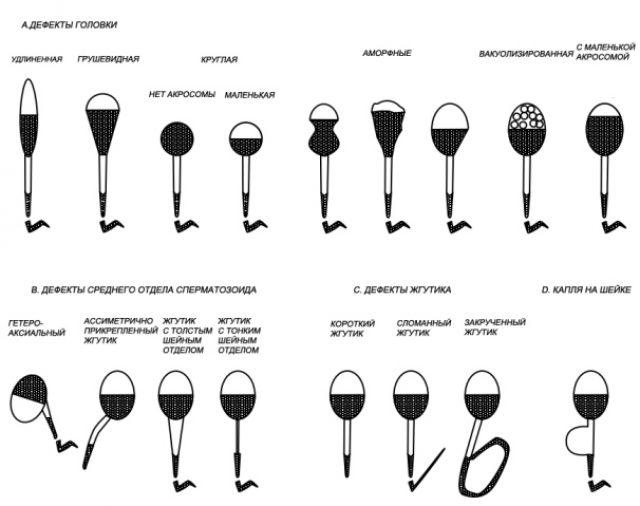 Дефекты сперматозоидов: схема