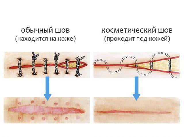 Косметический шов