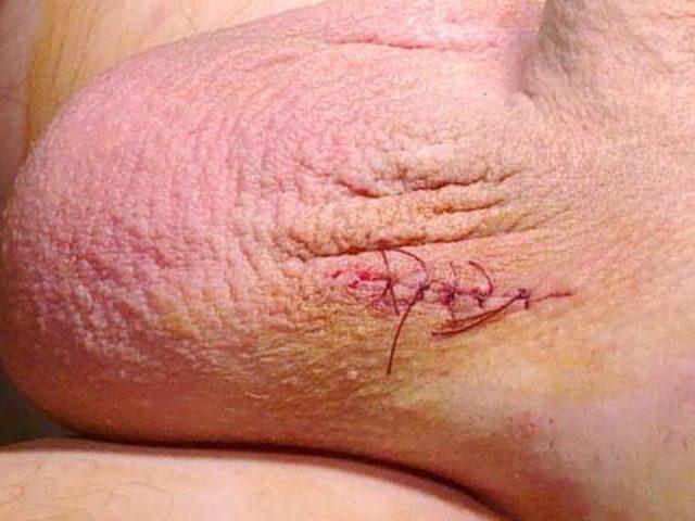 Шов на мошонке после операции