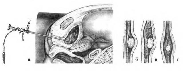 Эндоскопическое извлечение камня из мочеточника