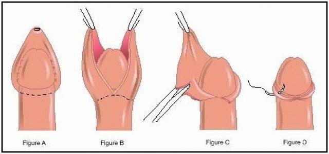 Этапы проведения хирургического обрезания