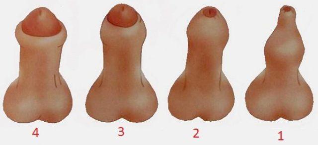 Четыре степени фимоза у мужчин