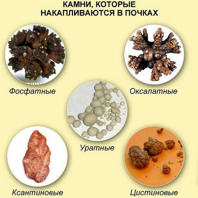 Разнообразие почечных камней