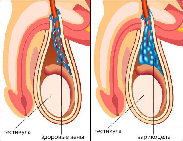 Нормальные вены яичка и варикоцеле