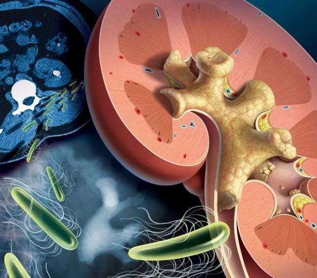 Атака бактерий на почки