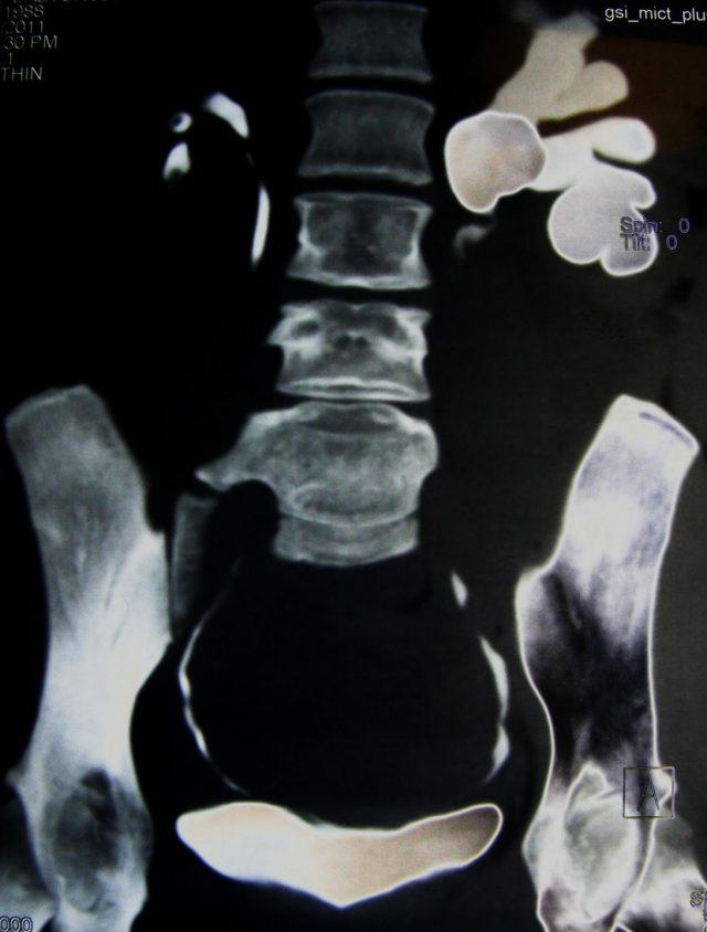 Снимок, полученный при радиоизотопной нефросцинтиграфии