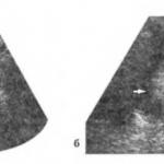 Папилломы мочевого пузыря