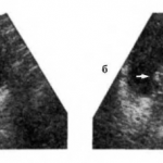 Рак шейки мочевого пузыря