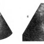 Плоская опухоль мочевого пузыря