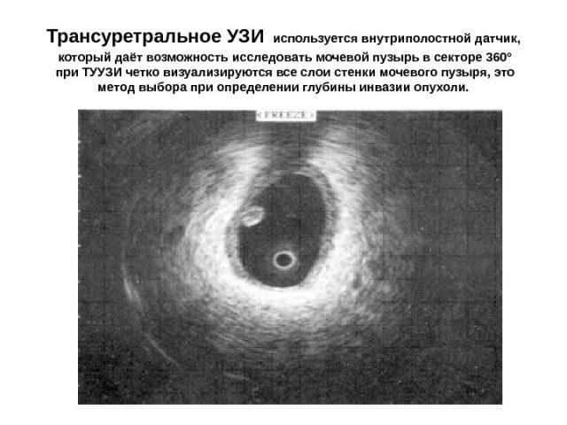 Сканограмма, полученная при трансуретральном УЗИ