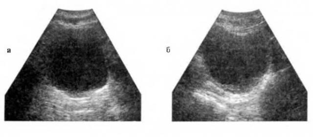 Нормальный мочевой пузырь на УЗ-снимках