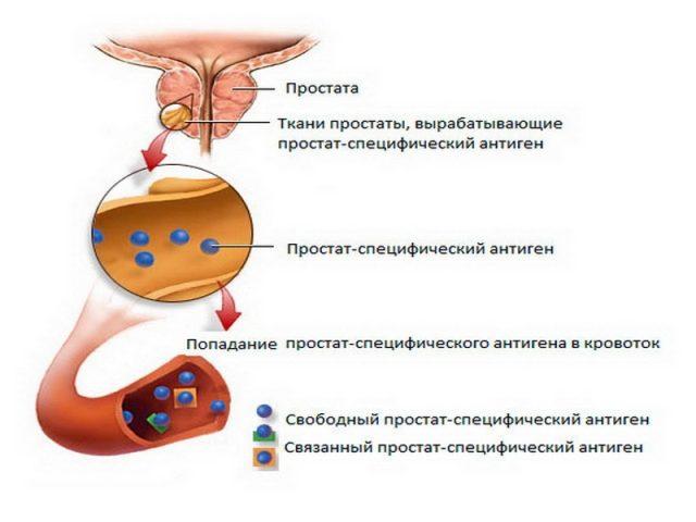 Простат-специфический антиген в крови: схема