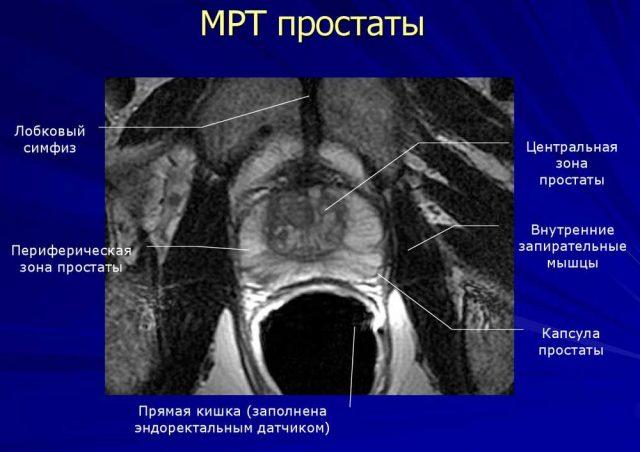 МРТ снимок предстательной железы