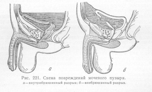 Внутри- и внебрюшинный разрыв мочевого пузыря (схема)