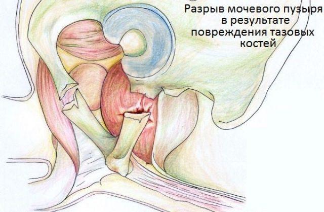 Повреждение пузыря отломком кости (схема)