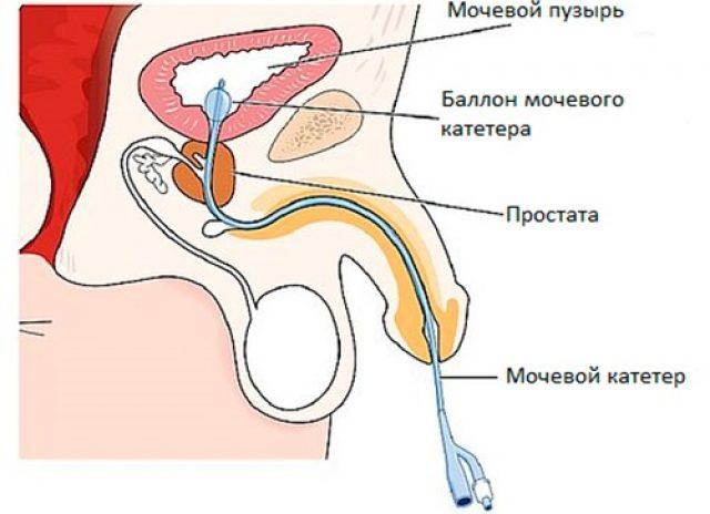Катетеризация мочевого пузыря мужчины (схема)