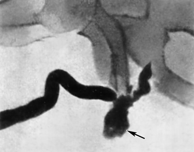 Разрыв уретры (урограмма)