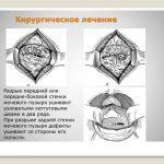 Ушивание разрыва мочевого пузыря (схема)