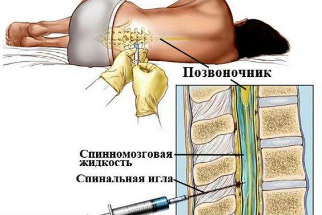 Эпидуральная анестезия (схема)