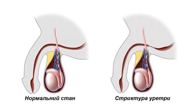 Стриктура уретры (схема)
