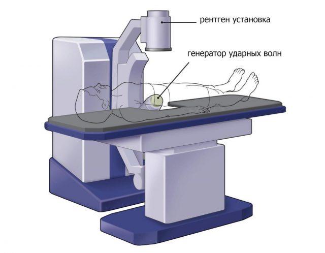 Ударно-волновая литотрипсия (схема)