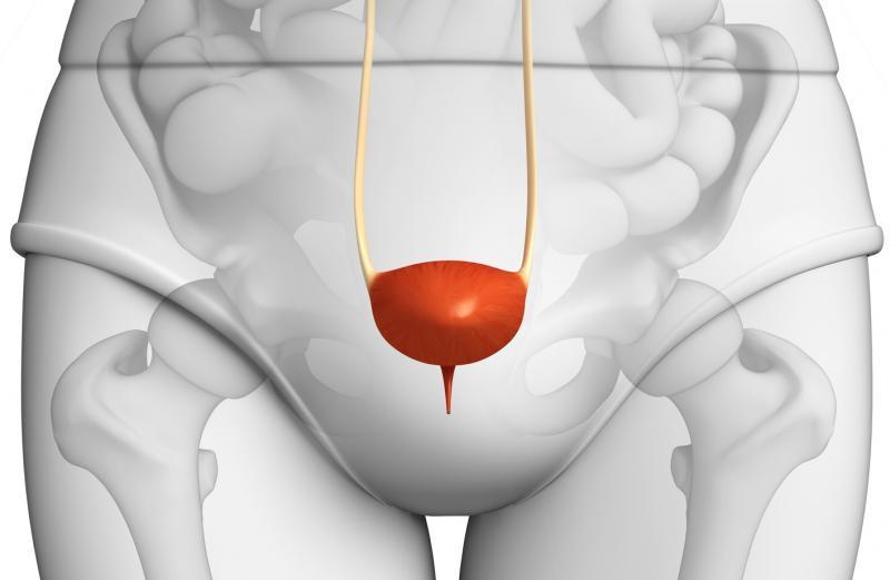 Цистография мочевого пузыря у женщин
