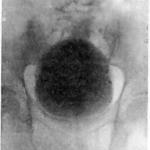 Восходящая цистограмма нормального мочевого пузыря