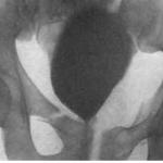 Цистограмма после тяжёлой травмы таза