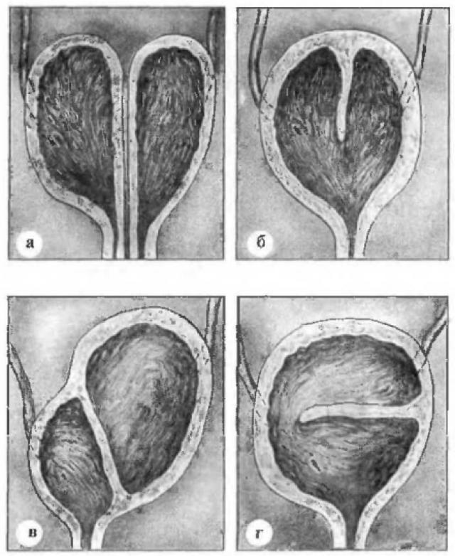 Виды удвоения мочевого пузыря