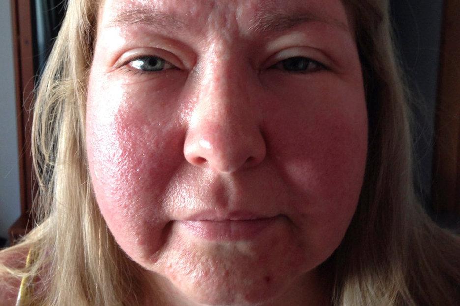 Одутловатость лица картинки