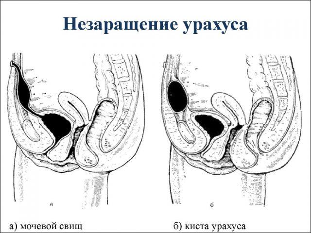 Незаращение урахуса (схема)