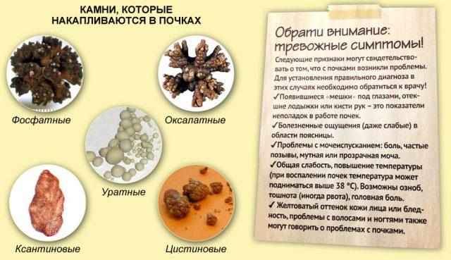 Камни в почках (фосфатные, оксалатные, уратные, ксантиновые, цистиновые)