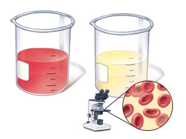 Образцы мочи: с видимой кровью (макрогематурия) и скрытой (микрогематурия)