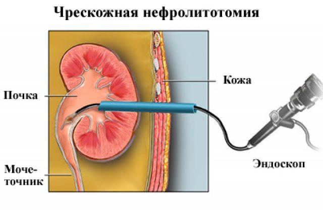 Чрескожная нефролитотомия