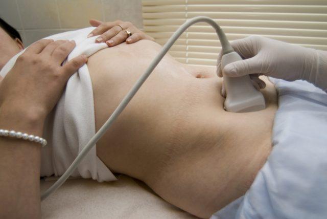 Женщине проводят УЗИ мочевого пузыря