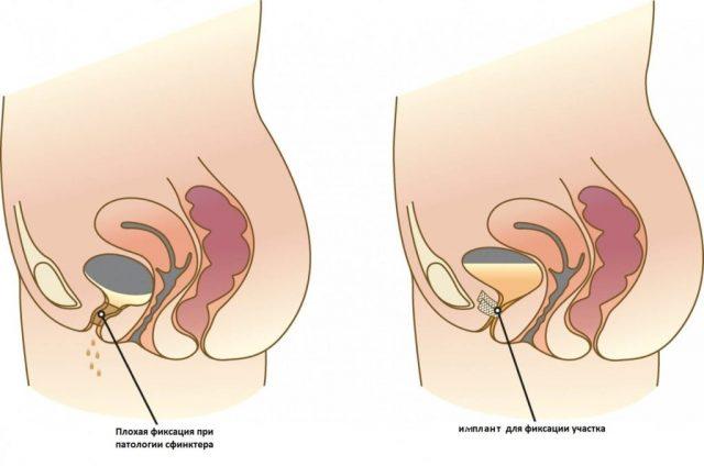 Фиксация уретры синтетическим имплантом: рисунок
