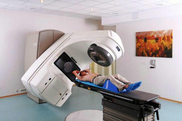 Пациент проходит лучевую терапию