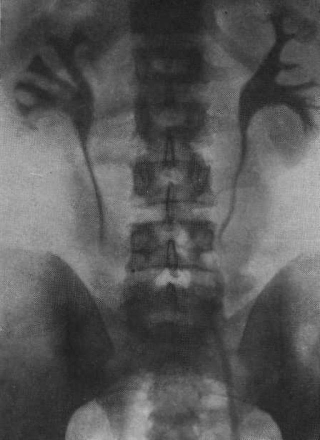 Экскреторная урография (снимок)