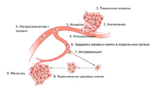 Распространение раковой опухоли (схема)