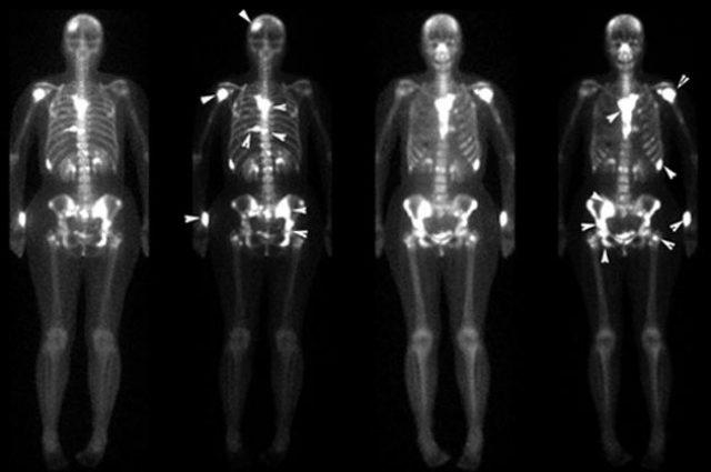 Результат остеосцинтиграфии